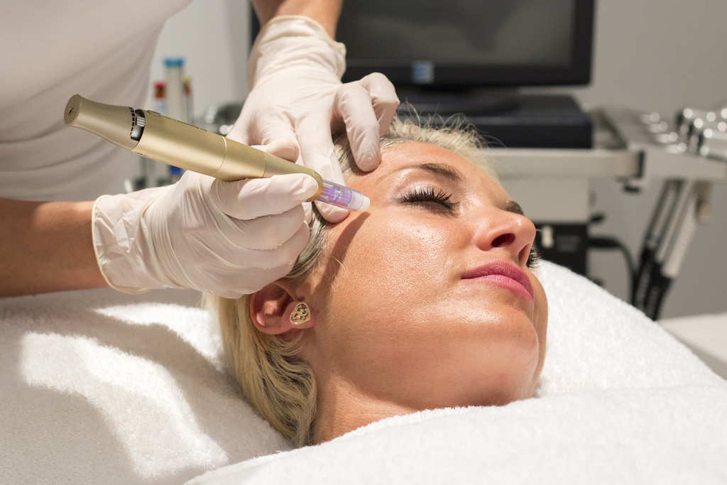 Microneedling treatments at MedSpa Ibiza